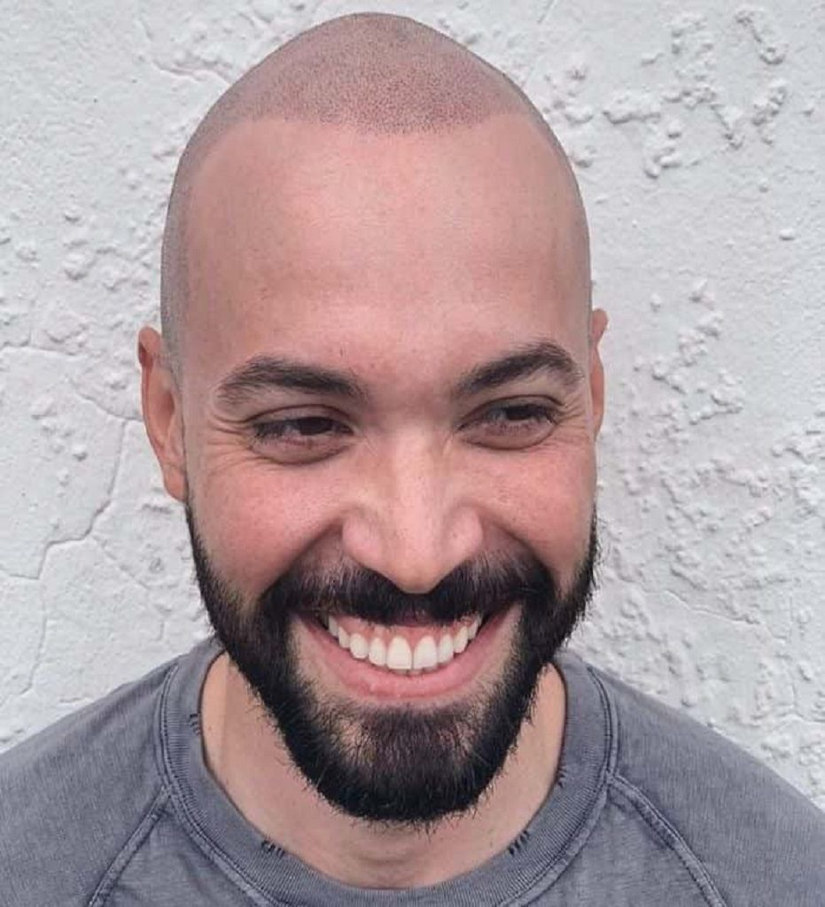 Bald hairstyle - Beyoung Blog
